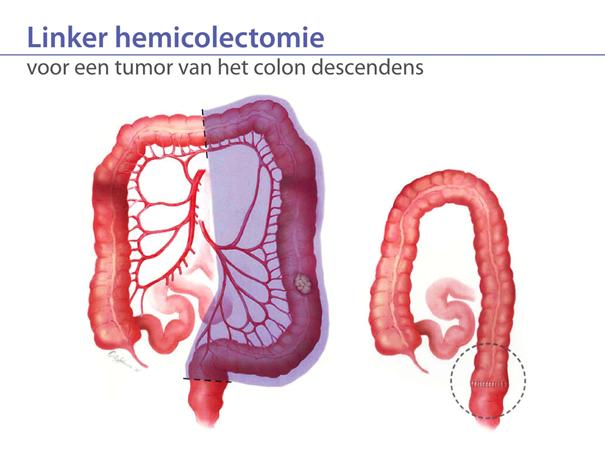 linker hemicolectomie